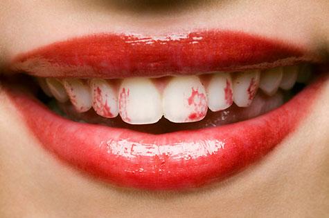 lipstickonteeth