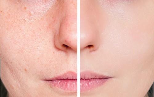 Visage-acné