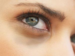 """"""" Les Secrets de Beauté de nos Grands-Mères """" Pic-yeux-fatigues-cerne-oeil-300-225"""