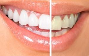 les 3 meilleurs astuces pour avoir les dents blanches astuces de filles. Black Bedroom Furniture Sets. Home Design Ideas