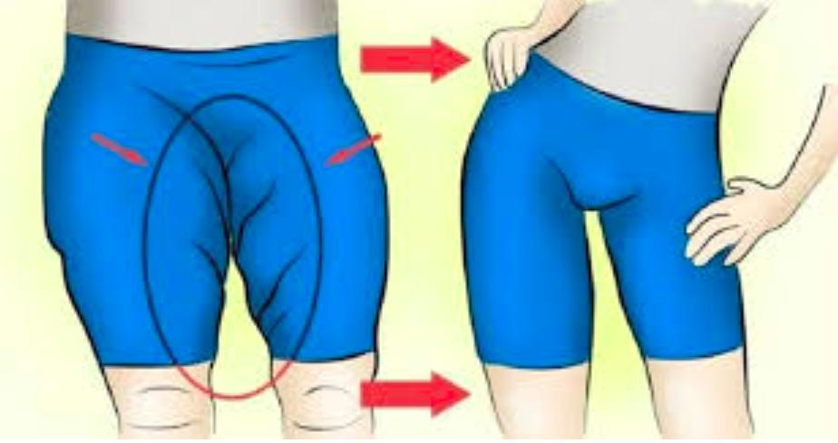 5 astuces pour perdre la graisse à l'interieur des cuisses