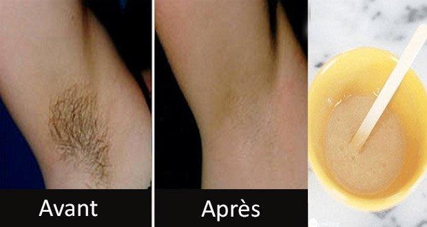 Une technique de grand mère pour retirer les poils indésirables définitivement (sans épilation ni rasage)